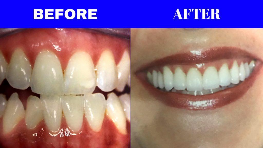 Glendale Dentist